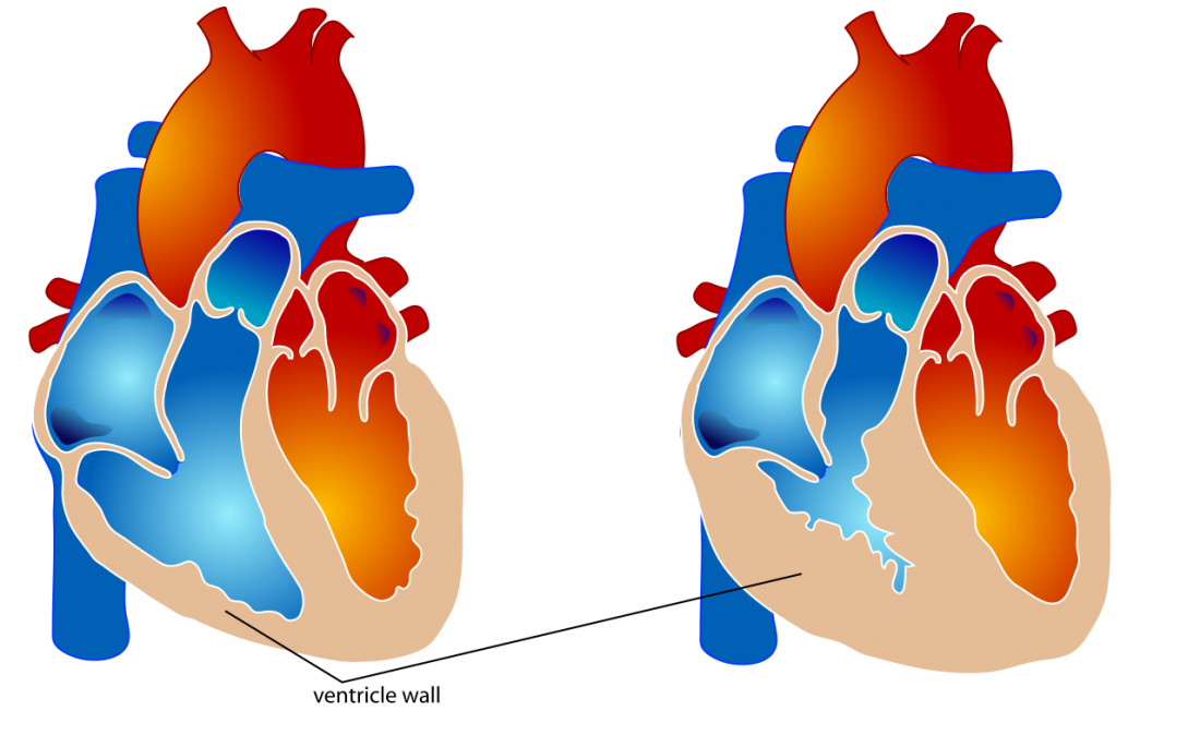 Thickened clipart ventricular.